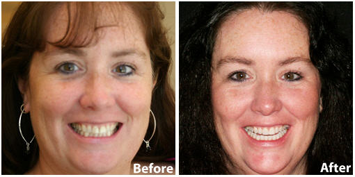 Dental Veneers Before and After Photo | Clarendon Dental Arts