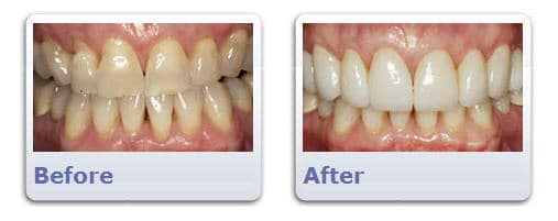 Dental Veneers Before and After | Clarendon Dental Arts