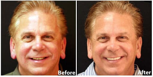 Arlington Smile Rejuvenation & Teeth Whitening | Clarendon Dental Arts |