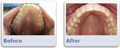 Jack Before & After Invisalign | Clarendon Dental Arts | Arlington, VA