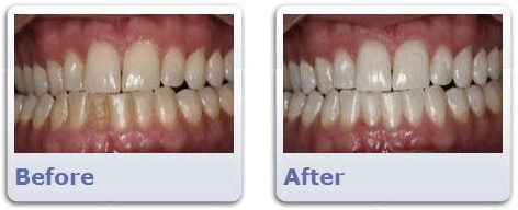 Teeth Whitening Before & After | Clarendon Dental Arts | Arlington, VA