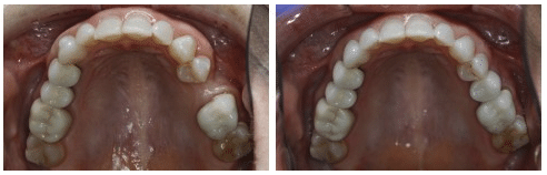 Dental Implant before & after photo - Arlington, VA