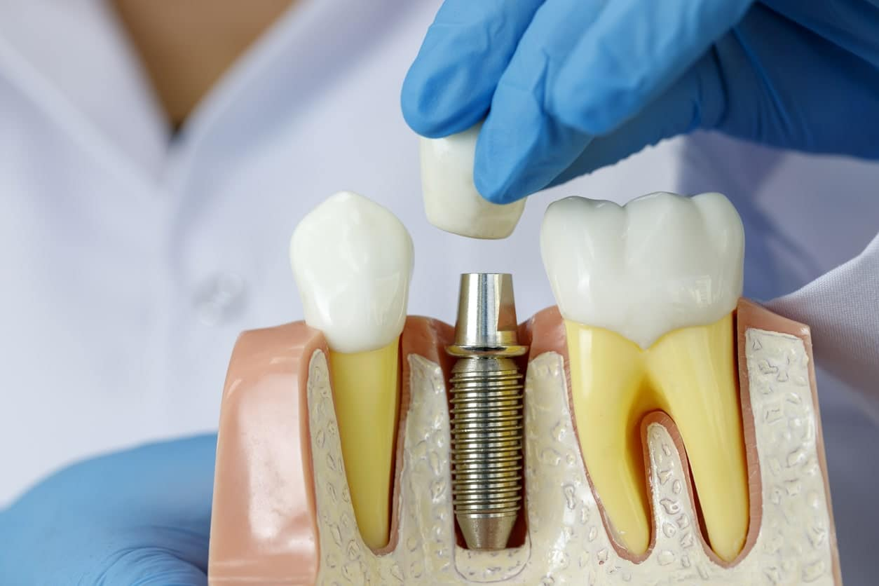 Dental Implants Arlington | Implant Dentistry Tysons VA