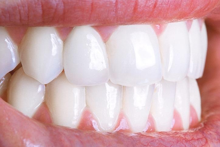 teeth whitening | Arlington VA