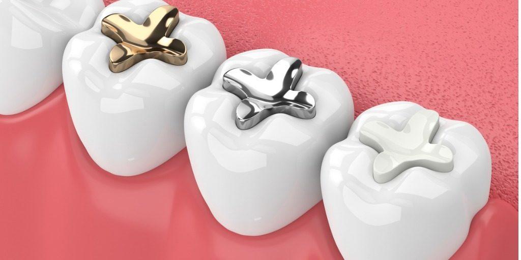 Tooth Fillings Virginia | Clarendon Dental