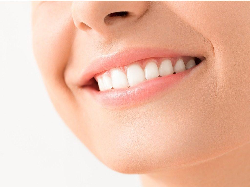 Dental Fillings in Virginia